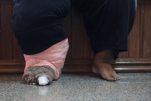 Elephantiasis Causes Side Effects And Treatments At