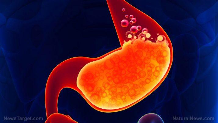 gastritis schmerzen beim essen arm.jpg