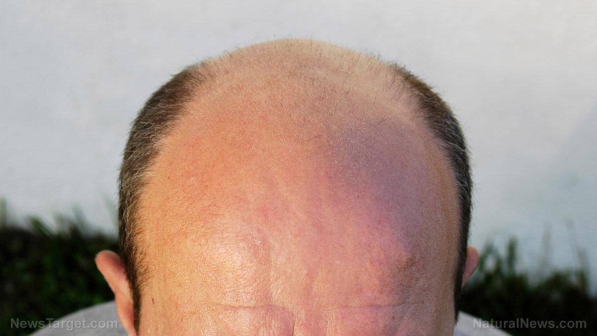 Alopecia Causes Side Effects And Treatments At