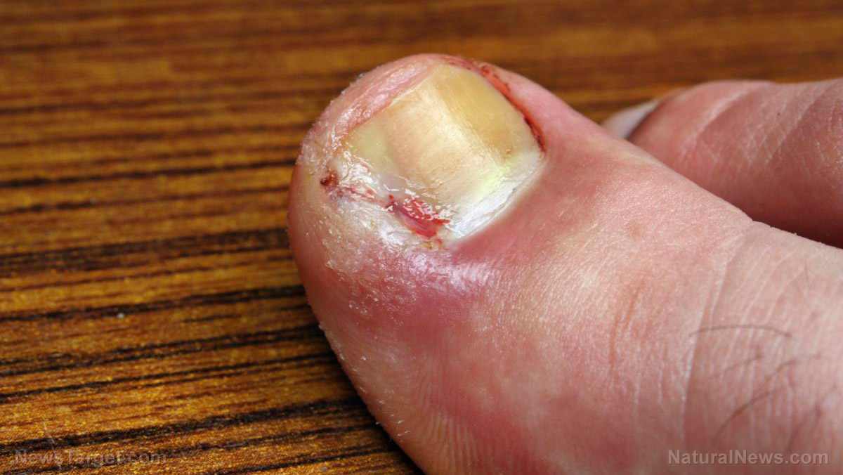Cellulitis Causes Side Effects And Treatments At