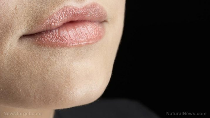 lip cancer causes side effects and treatments at naturalpedia com